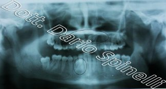 radiografia canini inclusi