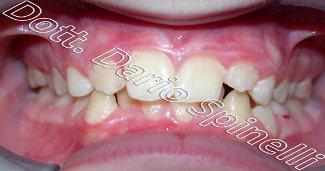 foto agenesia dentale prima del trattamento